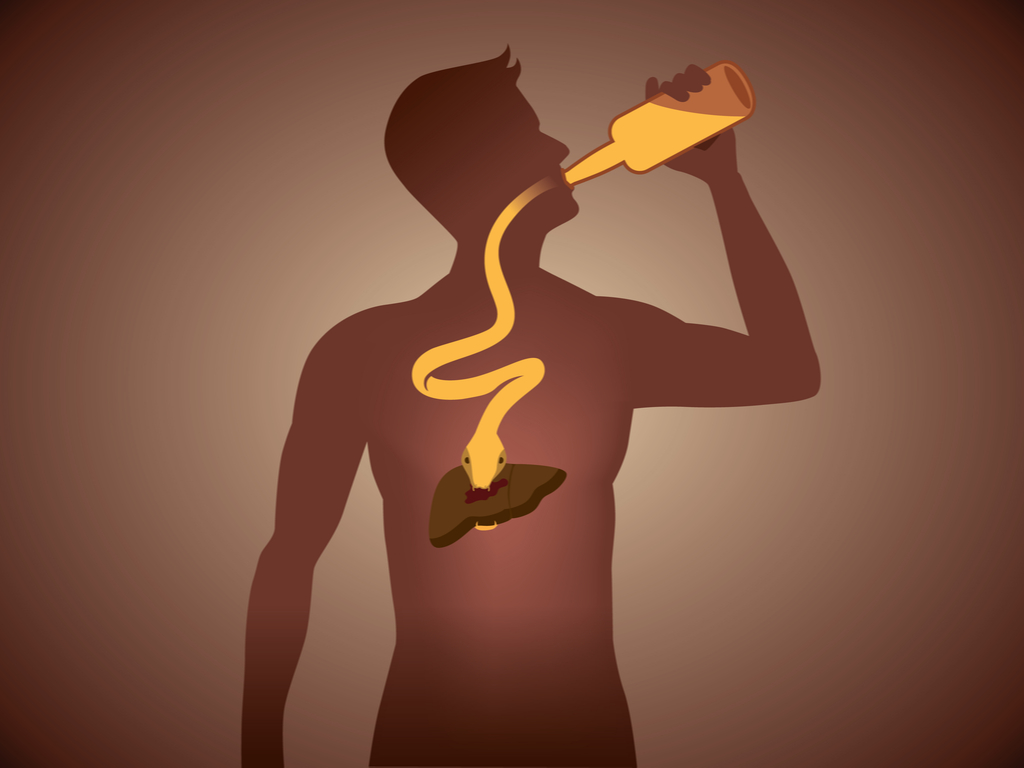 Alcoholic-liver-disease