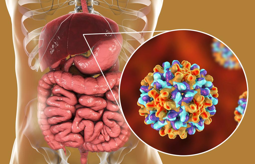 Viral-hepatitis-hepatitis-b