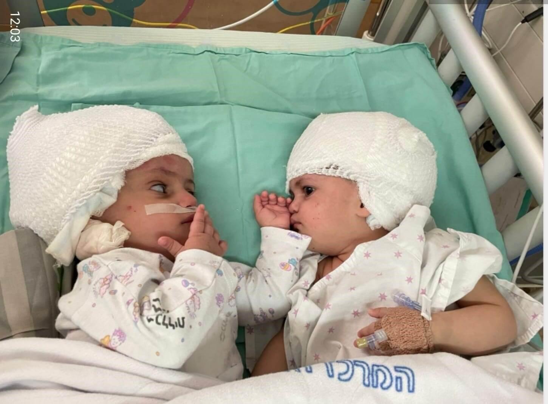 התאומות לאחר הניתוח. צילום: סורוקה